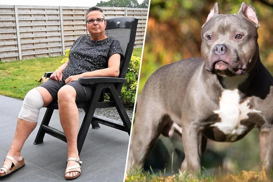 Anita Claessens wordt nog steeds behandeld voor de verwondingen aan haar been, nadat ze werd aangevallen door vijf American bully's (themabeeld) .