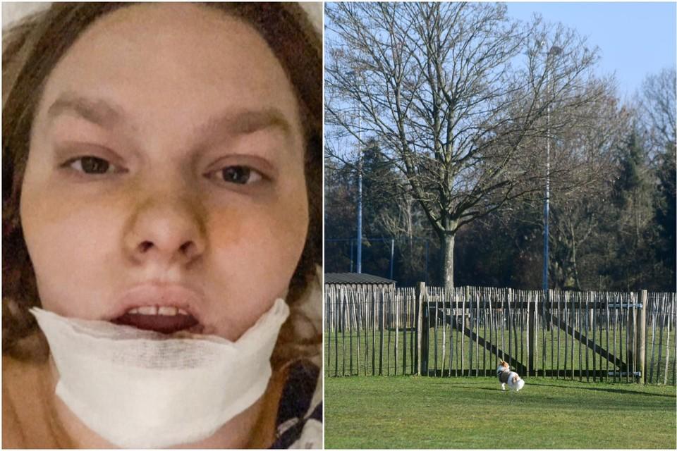 Lejla vlak na het incident (links). Rechts de hondenweide aan Fort 3 in Borsbeek. De hond op de foto heeft niets met de feiten te maken.