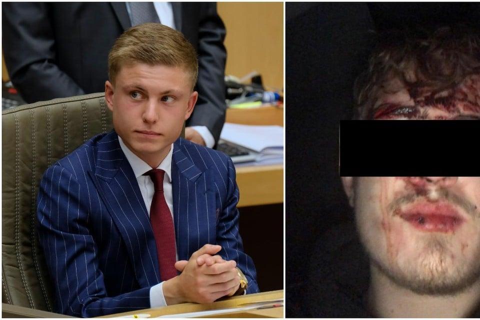 """Vlaams Parlementslid Filip Brusselmans (l) plaatste op zijn Facebookpagina het verhaal van een vriend - met foto - die zou zijn aangevallen door vijf Noord-Afrikanen. Niet waar, zo bleek uit onderzoek door de politie. """"Maar waarom zou ik hem niet geloven?"""""""